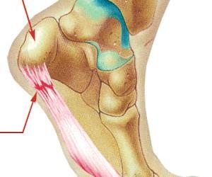 הטיפול הטבעי והיעיל בדורבן בכף הרגל – עקב הרגל
