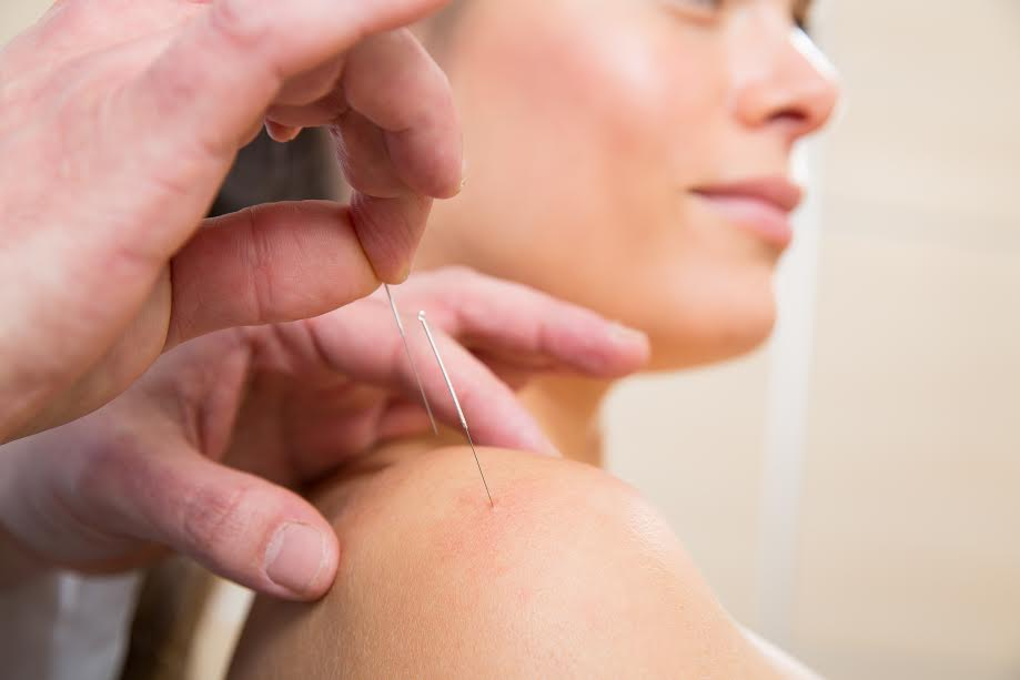 כתף קפואה - טיפול יעיל בכאבי כתף קפואה Frozen shoulder